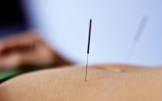 holistic healing with abdominal acupuncture in Madison, WI